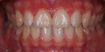 2 коронки на рефракторе фото после лечения